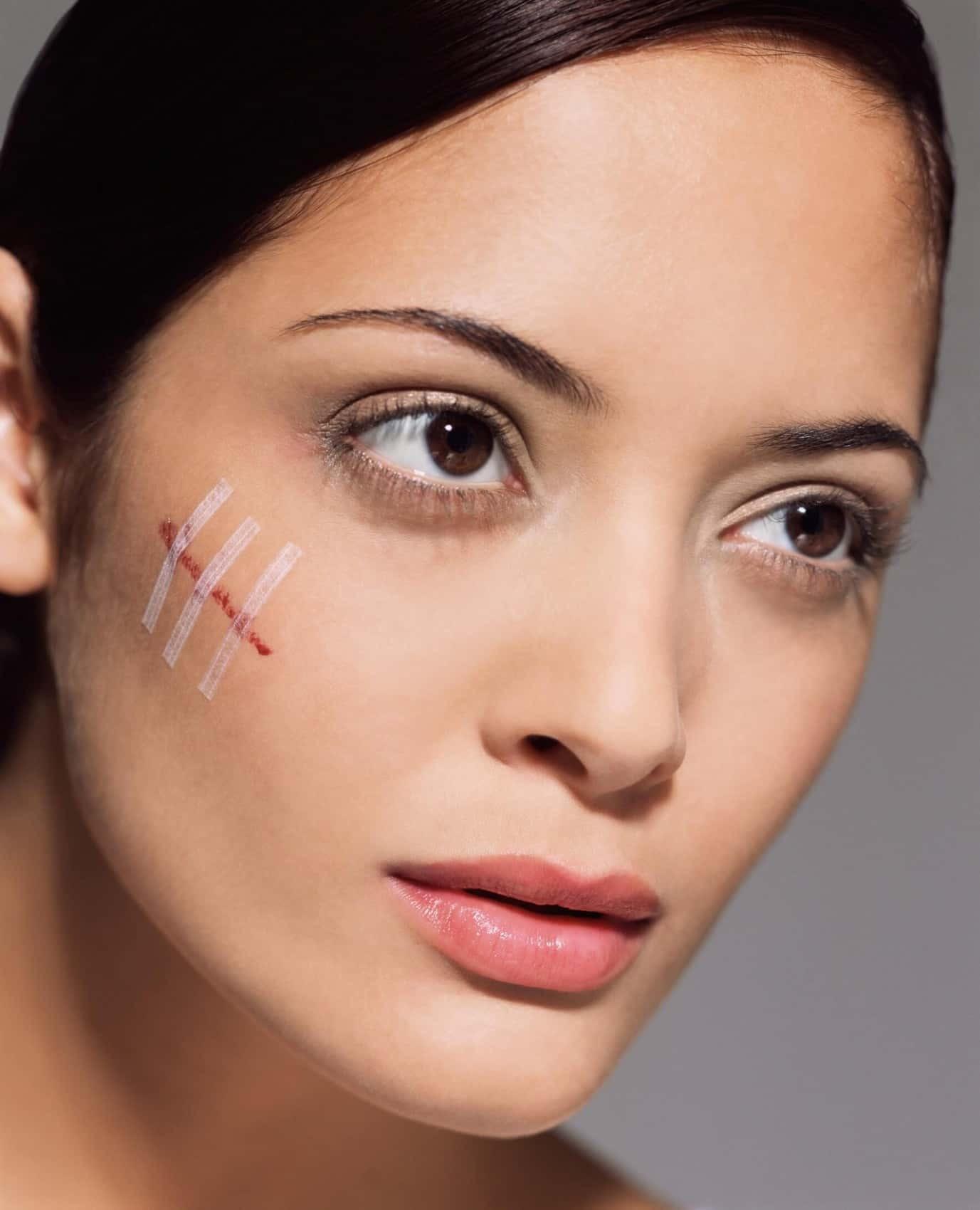 Как избавиться от рубцов и шрамов и восстановить кожу